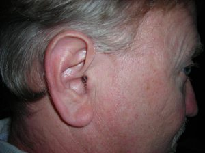 The hearing aids are barely noticeable.